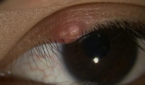 よくある目の病気「ものもらい/霰粒腫」 , 名古屋市名東区・千種